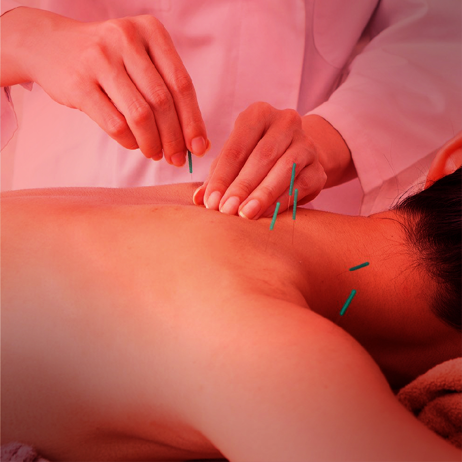 Accupuncture needles