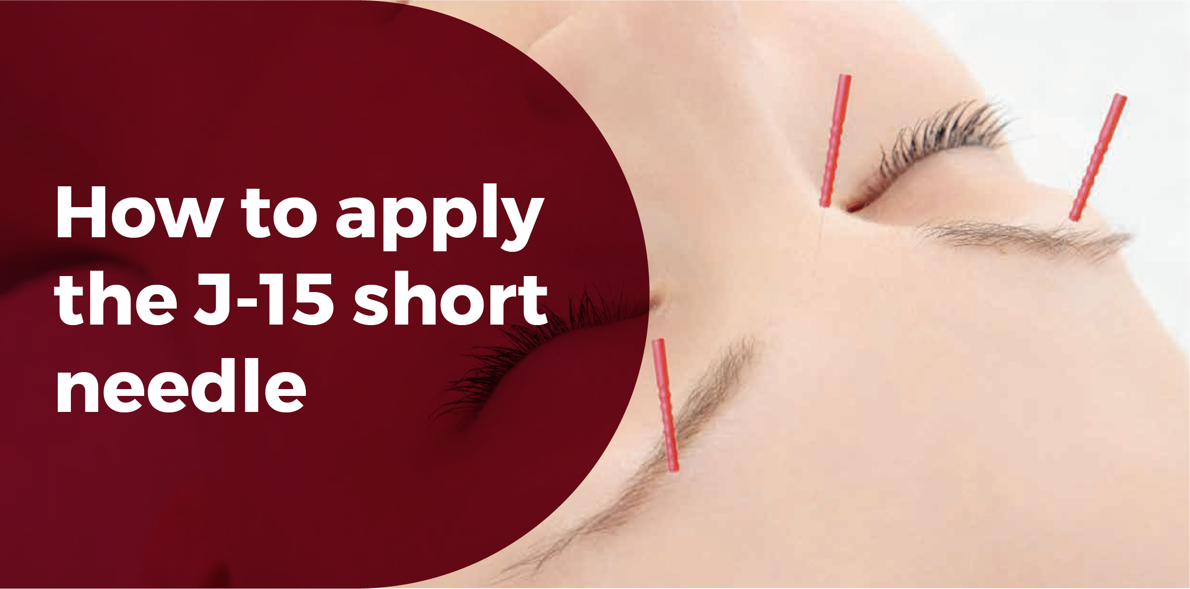 how to apply the J-15 short needle